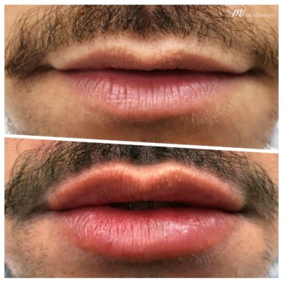 before-after-m1-dermal-fillers-1.jpg
