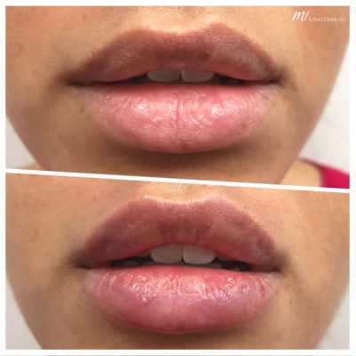 before-after-m1-dermal-fillers-3.jpg