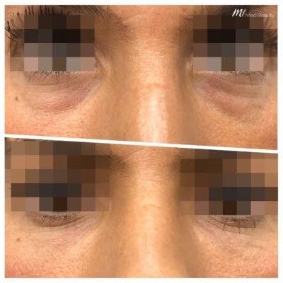 before-after-m1-dermal-fillers-5.jpg
