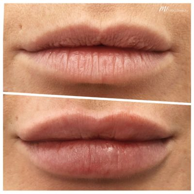 before-after-m1-dermal-fillers-6.jpg