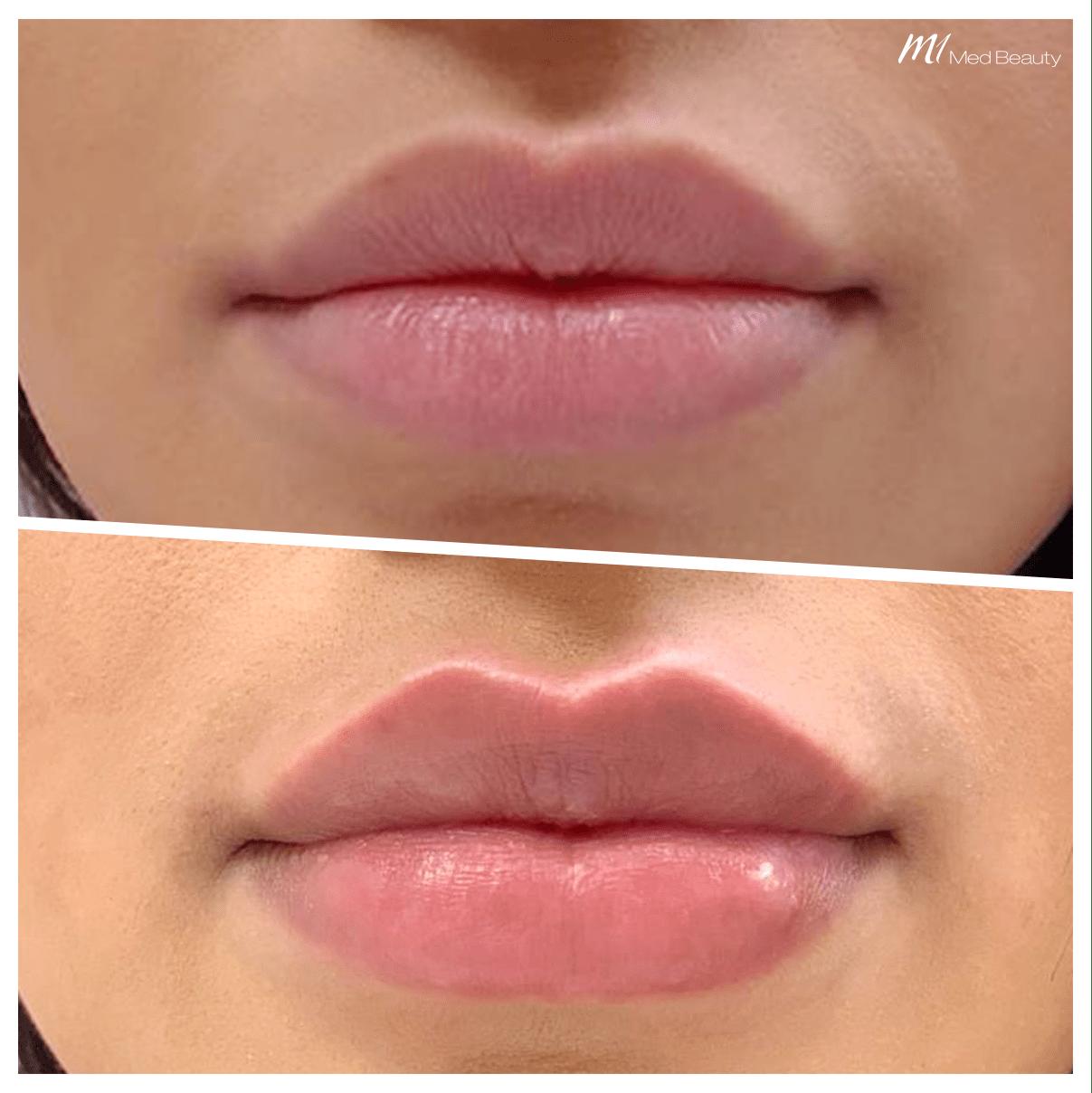 lippen opvullen voor na resultaten