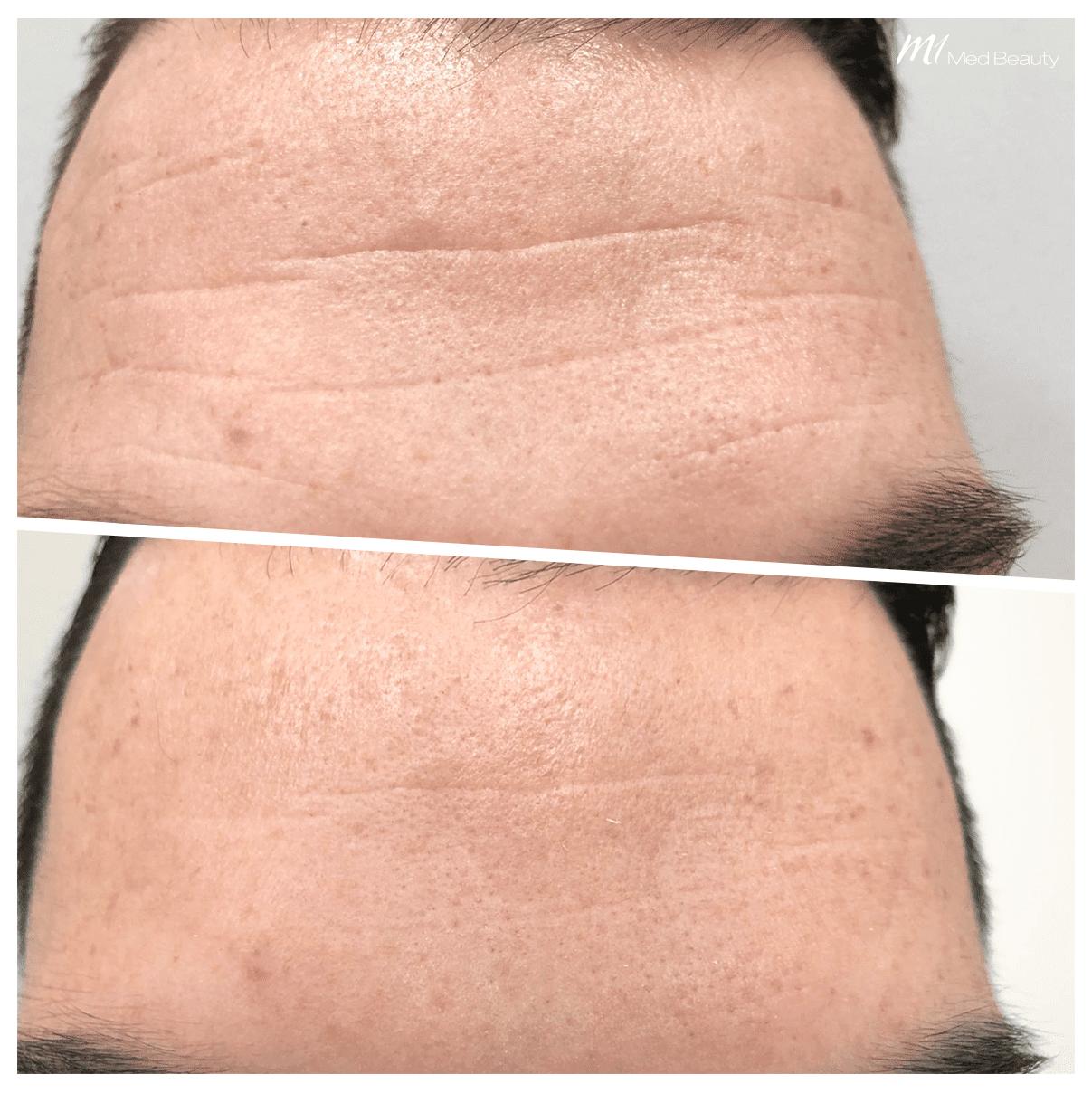 Voorhoofdsrimpels Behandling - M1 Med Beauty client