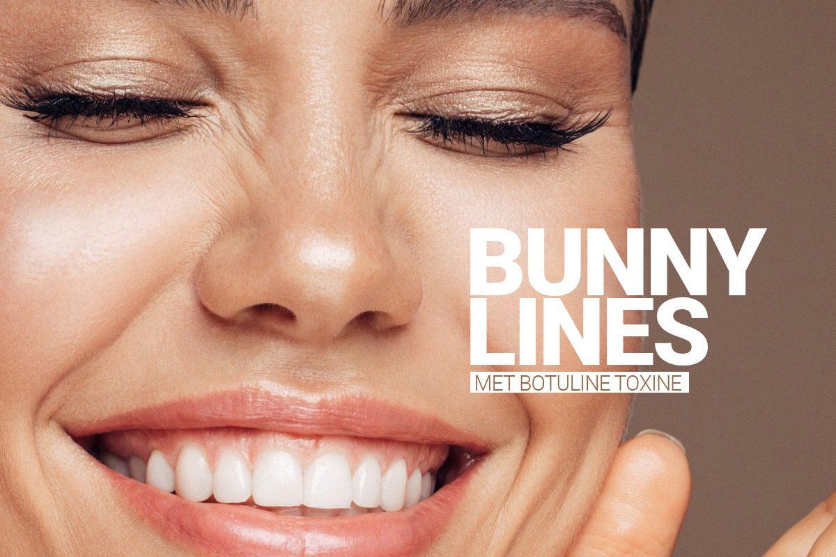 Bunny Lines