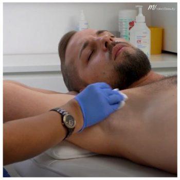 hyperhidrosis_behandeling